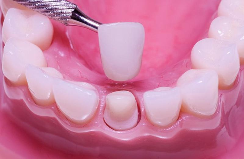 bọc răng sứ có đau, tốt, hại không