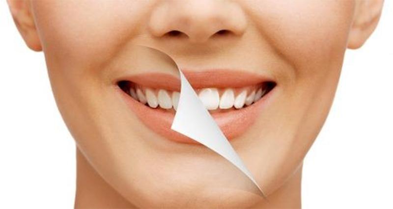 Tẩy trắng răng ở đâu tốt?