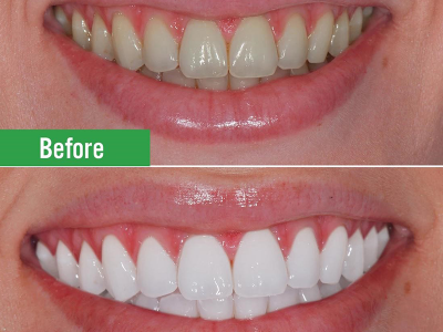Tẩy Trắng Răng Ở Đâu Tốt? Những Lưu Ý Về Lựa Chọn Tẩy Trắng Răng