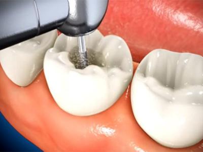 Trám Răng Lấy Tủy Là Gì? Tại Sao Cần Thực Hiện Phương Pháp Trám Răng Lấy Tủy?
