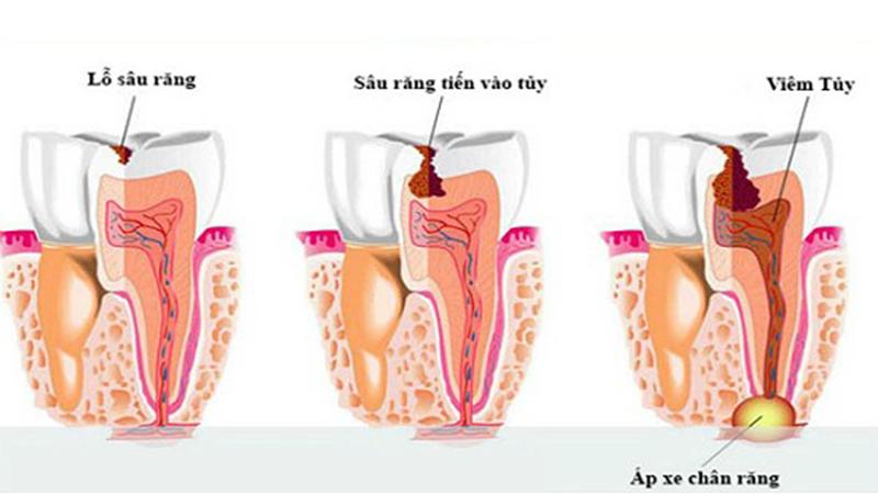 trám răng lấy tủy