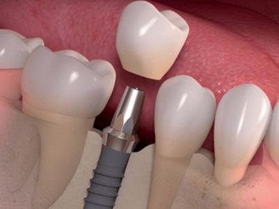 Trồng Răng Implant Ở Đâu Tốt TPHCM