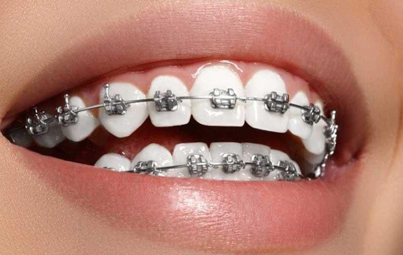 Niềng Răng