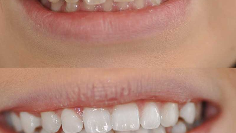Niềng Răng Clear Aligners