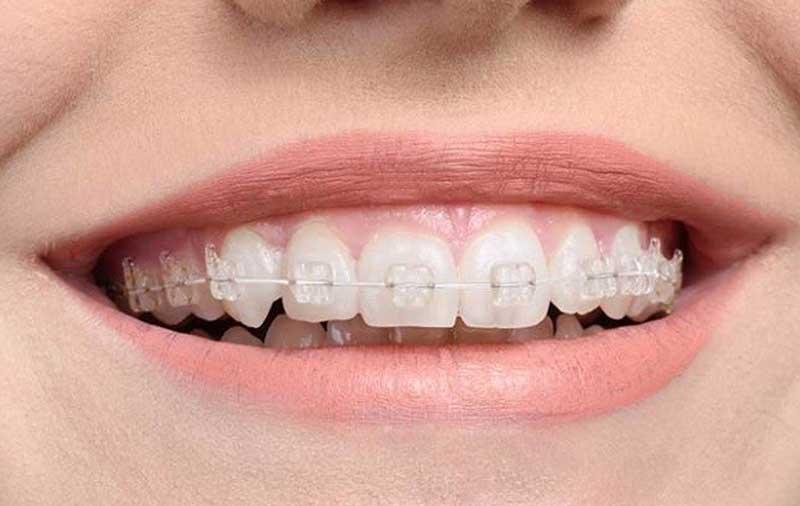 Niềng Răng Trong Suốt, Không Mắc Cài